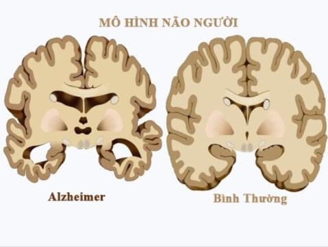 Quế giúp ngăn chặn bệnh Alzheimer